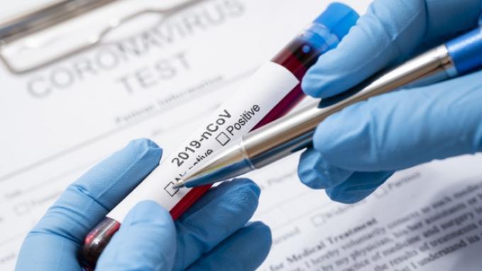 SATU WARGA SAMOSIR NEGATIF COVID-19 SETELAH RT-PCR KETIGA